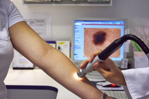 Hautkrebsdiagnostik