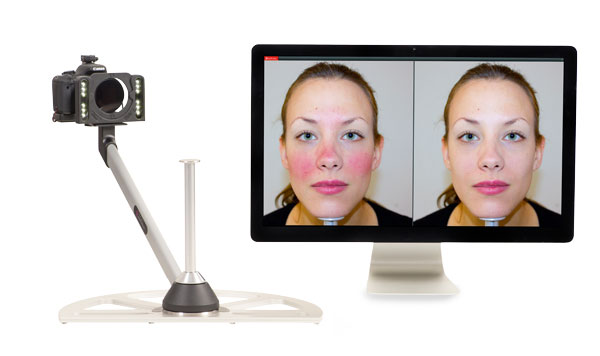 digitale Hautanalyse Teaser